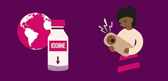 Iodine deficiency infographic